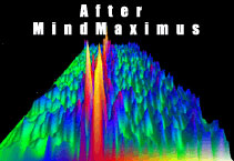 Deep Brainwave Stimulation